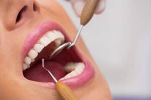 כתרים בלתי נראים לשיניים