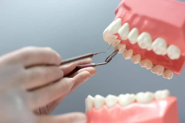 האם כואב להתקין שיניים תותבות