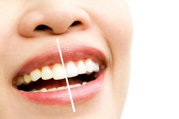 שיוף שיניים לפני ציפוי חרסינה