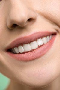 איך לבחור טכנאי שיניים מקצועי